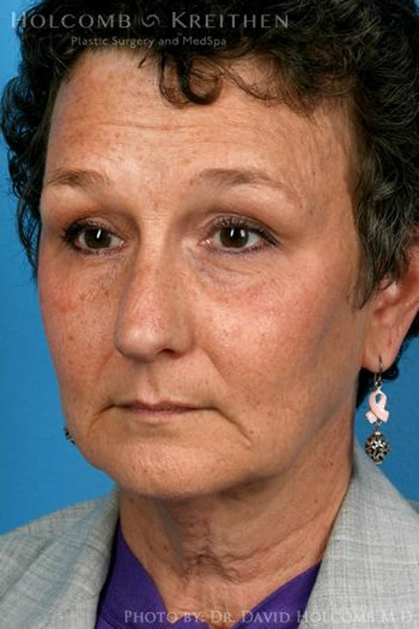 Laser/RF Assisted Facelift Gallery - Patient 6279466 - Image 3