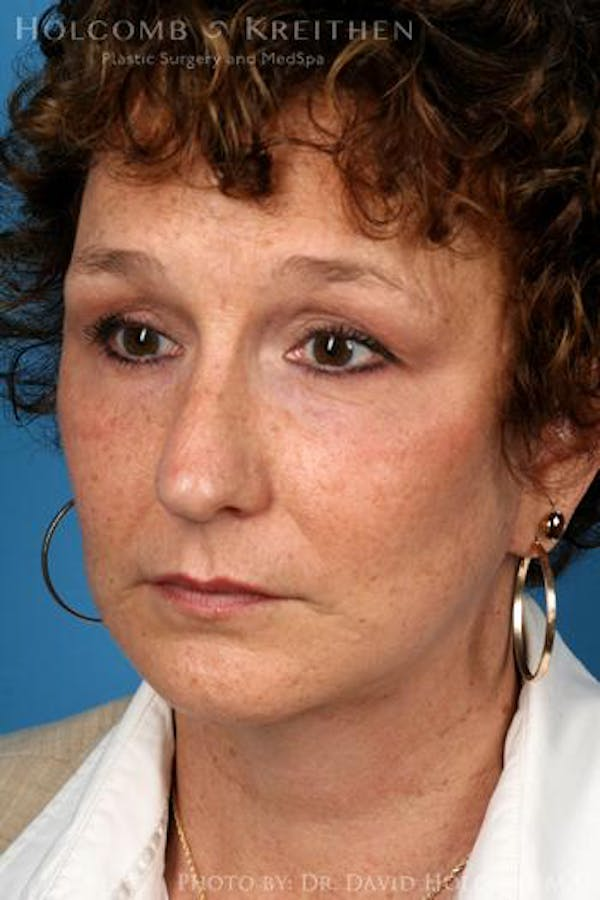 Laser/RF Assisted Facelift Gallery - Patient 6279466 - Image 4