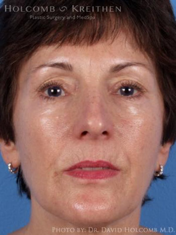Laser/RF Assisted Facelift Gallery - Patient 6279480 - Image 1