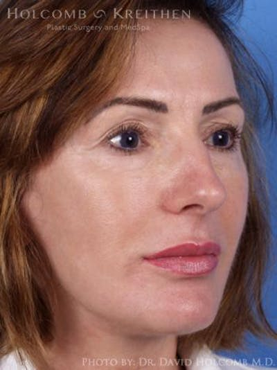 Laser/RF Assisted Facelift Gallery - Patient 6279480 - Image 4