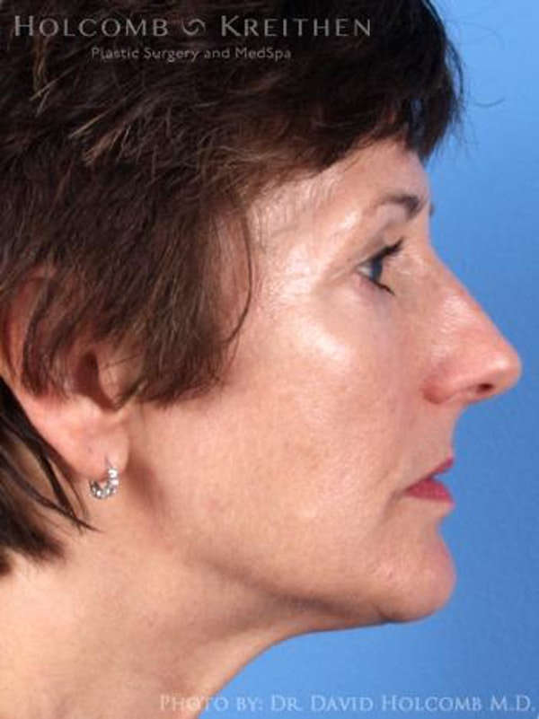 Laser/RF Assisted Facelift Gallery - Patient 6279480 - Image 5