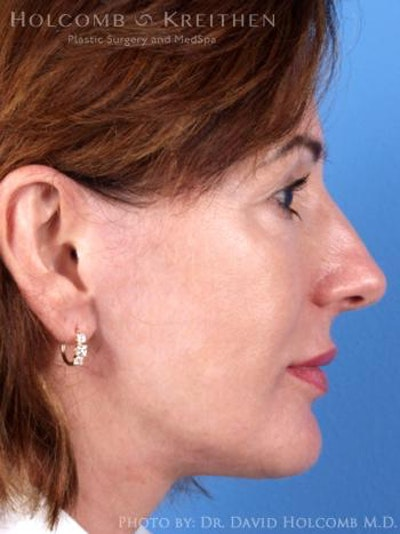 Laser/RF Assisted Facelift Gallery - Patient 6279480 - Image 6
