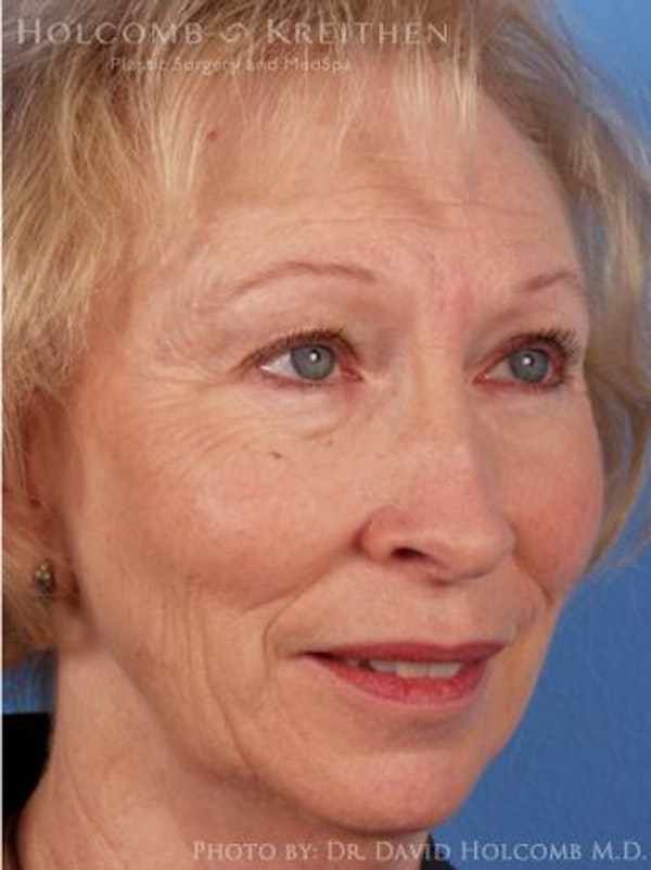 Laser/RF Assisted Facelift Gallery - Patient 6279481 - Image 3