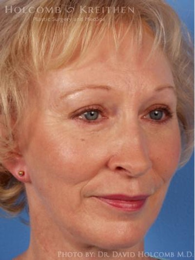 Laser/RF Assisted Facelift Gallery - Patient 6279481 - Image 4
