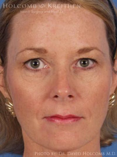 Laser/RF Assisted Facelift Gallery - Patient 6279482 - Image 10