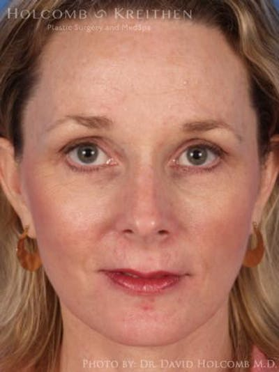 Laser/RF Assisted Facelift Gallery - Patient 6279482 - Image 2