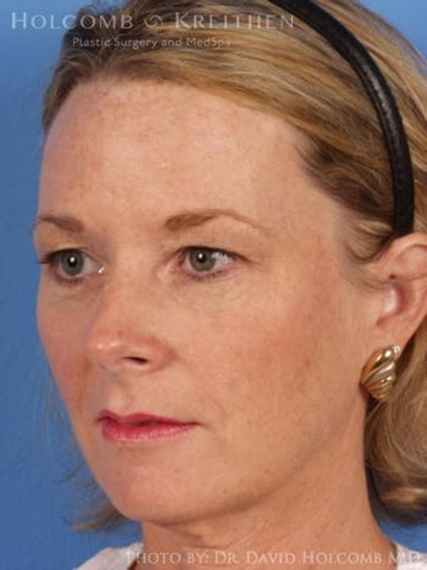 Laser/RF Assisted Facelift Gallery - Patient 6279482 - Image 3