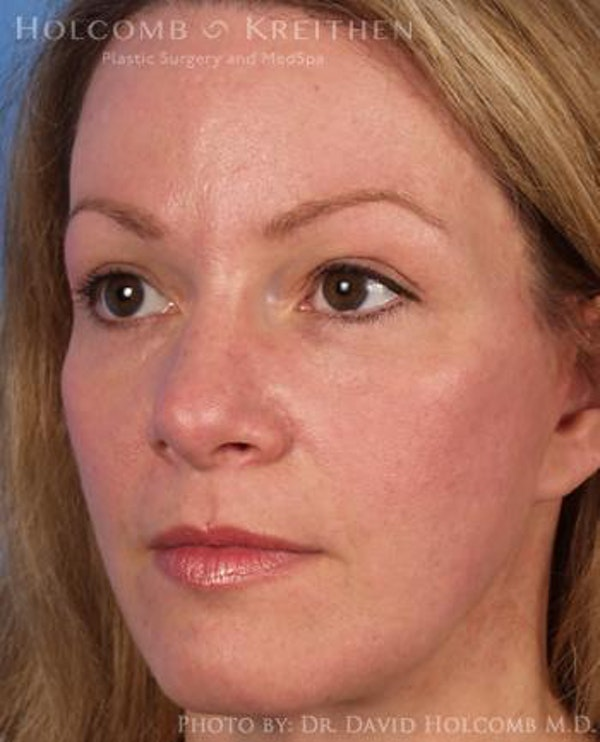 Laser/RF Assisted Facelift Gallery - Patient 6279486 - Image 4
