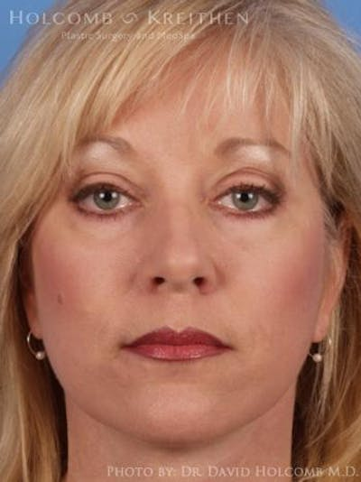 Laser/RF Assisted Facelift Gallery - Patient 6279501 - Image 2