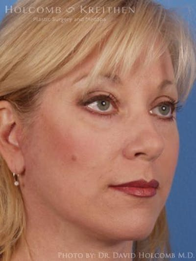 Laser/RF Assisted Facelift Gallery - Patient 6279501 - Image 4