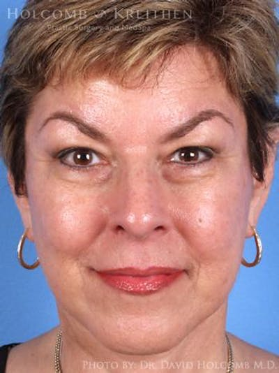 Laser/RF Assisted Facelift Gallery - Patient 6279518 - Image 2