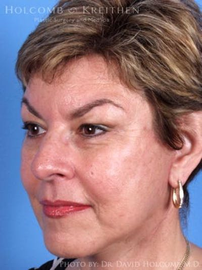 Laser/RF Assisted Facelift Gallery - Patient 6279518 - Image 4