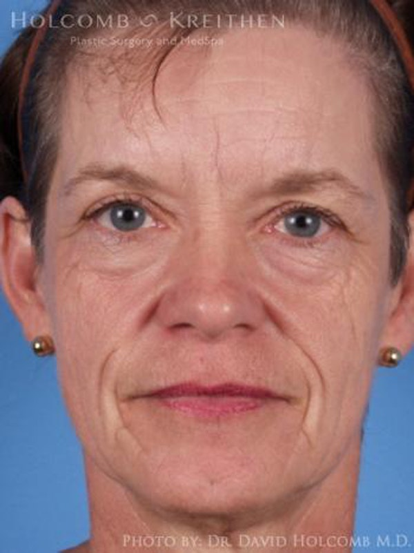 Laser/RF Assisted Facelift Gallery - Patient 6279520 - Image 1