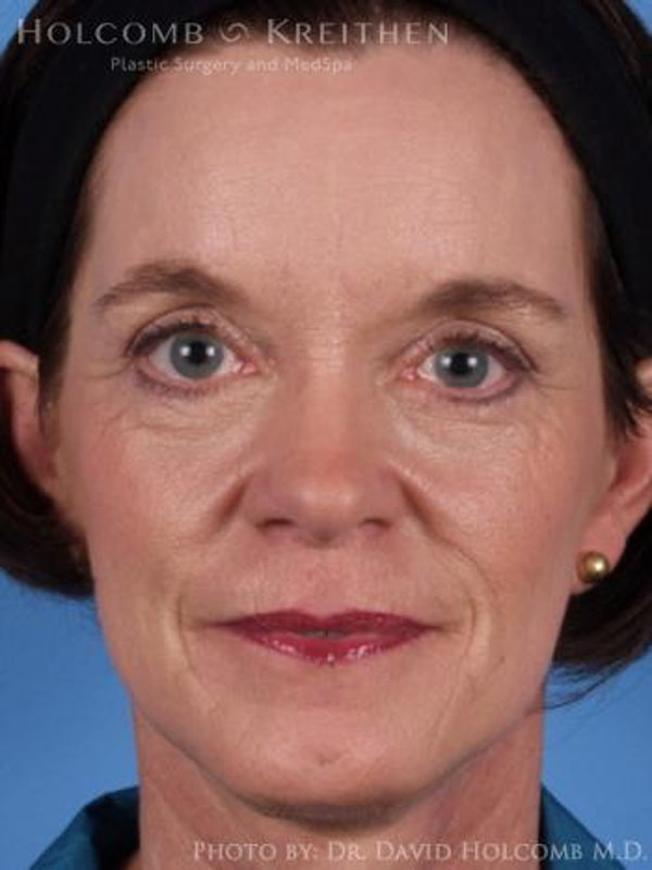 Laser/RF Assisted Facelift Gallery - Patient 6279520 - Image 2