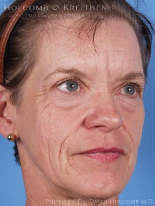 Laser/RF Assisted Facelift Gallery - Patient 6279520 - Image 3