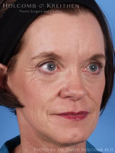 Laser/RF Assisted Facelift Gallery - Patient 6279520 - Image 4