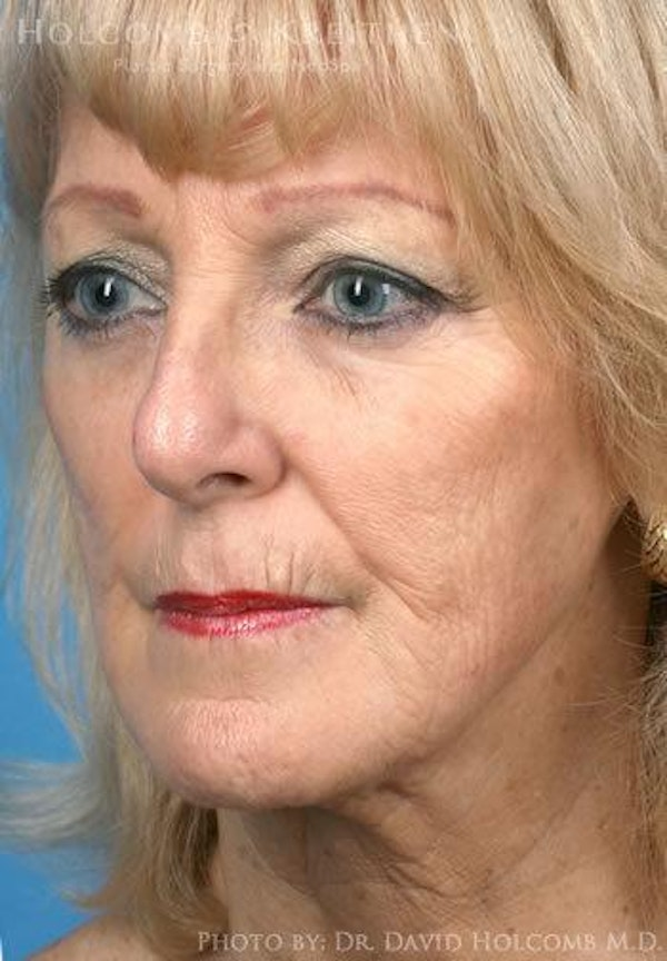 Laser/RF Assisted Facelift Gallery - Patient 6279523 - Image 3
