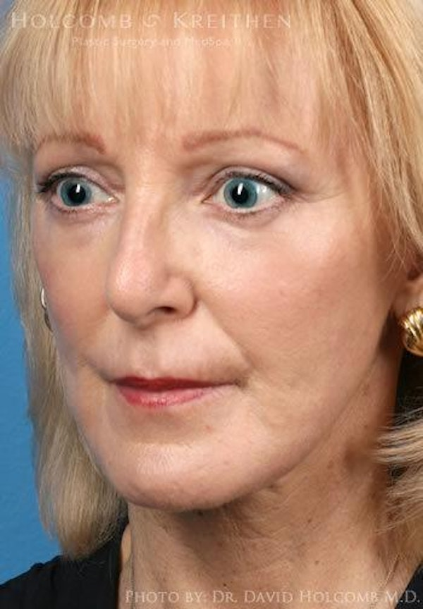 Laser/RF Assisted Facelift Gallery - Patient 6279523 - Image 4