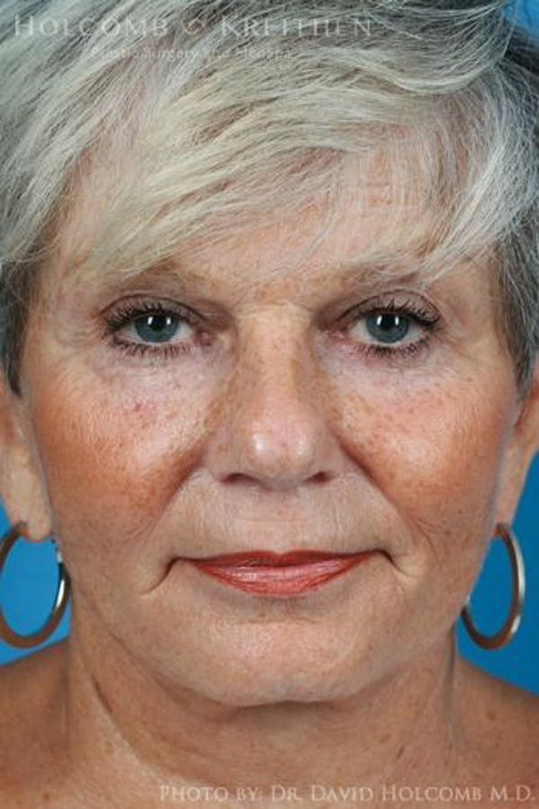 Laser/RF Assisted Facelift Gallery - Patient 6279525 - Image 2