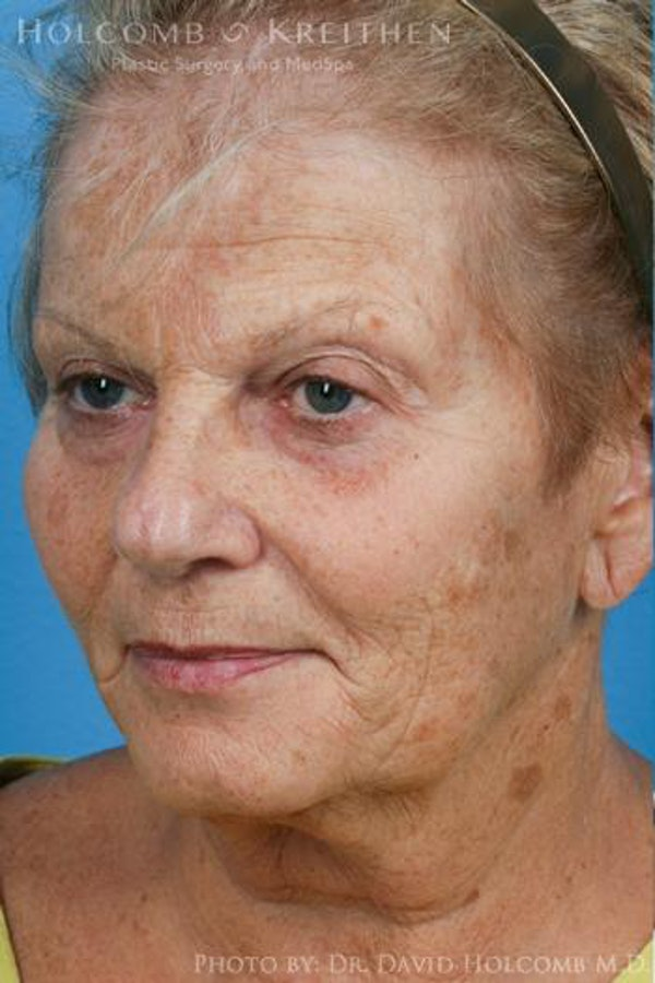 Laser/RF Assisted Facelift Gallery - Patient 6279525 - Image 3