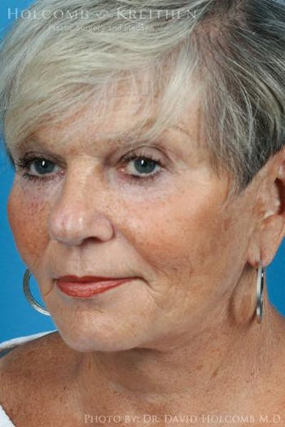 Laser/RF Assisted Facelift Gallery - Patient 6279525 - Image 4