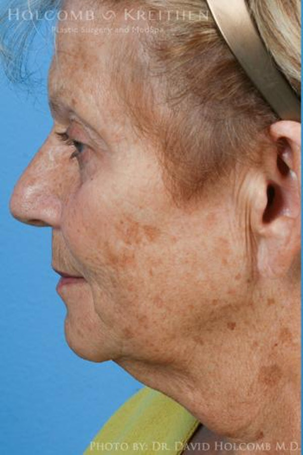 Laser/RF Assisted Facelift Gallery - Patient 6279525 - Image 5