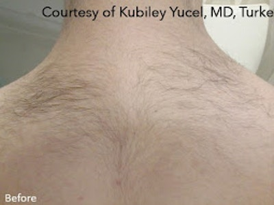 Clarity II Laser Hair Removal Gallery - Patient 7510135 - Image 1