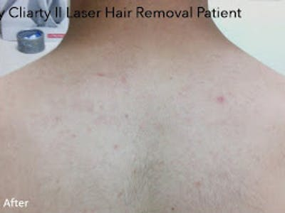 Clarity II Laser Hair Removal Gallery - Patient 7510135 - Image 2