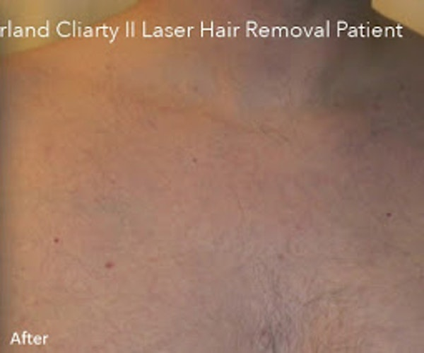 Clarity II Laser Hair Removal Gallery - Patient 7510136 - Image 2