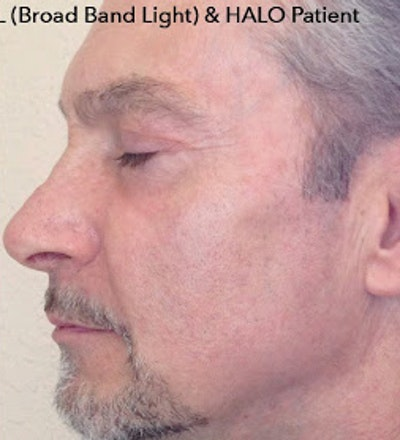 HALO Hybrid Fractional Laser Gallery - Patient 7510138 - Image 2