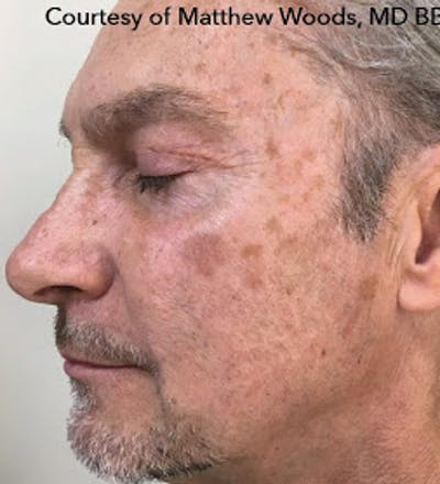HALO Hybrid Fractional Laser Gallery - Patient 7510138 - Image 1