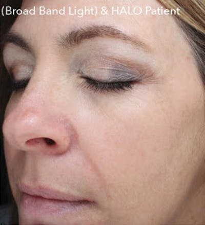 HALO Hybrid Fractional Laser Gallery - Patient 7510139 - Image 2