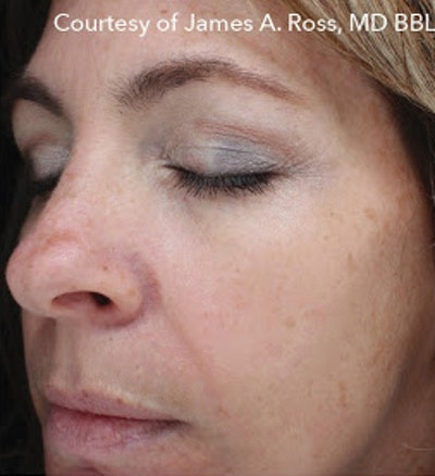 HALO Hybrid Fractional Laser Gallery - Patient 7510139 - Image 1