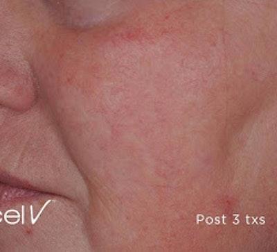 Excel V Vascular Laser Gallery - Patient 7510142 - Image 2