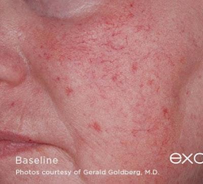 Excel V Vascular Laser Gallery - Patient 7510142 - Image 1