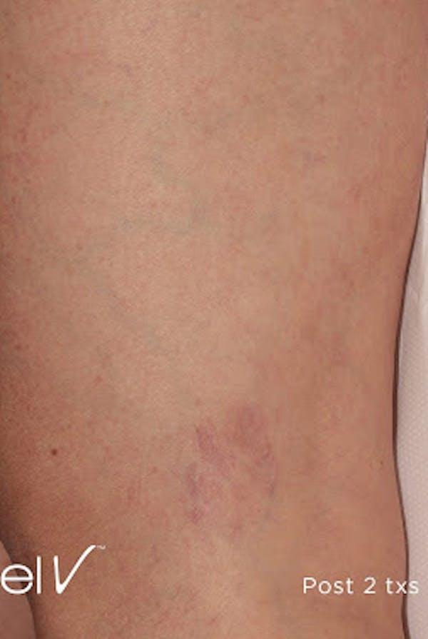 Excel V Vascular Laser Gallery - Patient 7510143 - Image 2