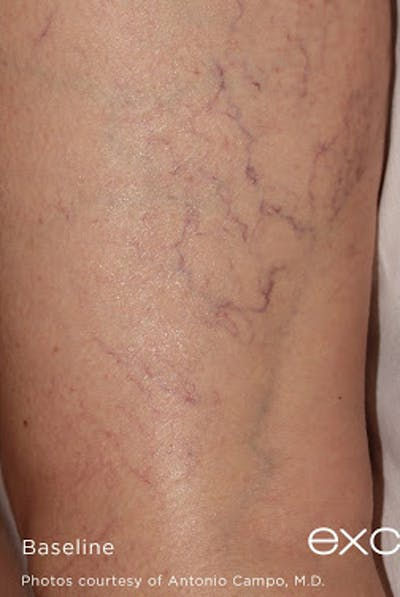Excel V Vascular Laser Gallery - Patient 7510143 - Image 1