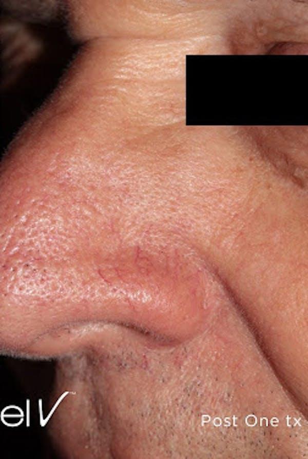 Excel V Vascular Laser Gallery - Patient 7510144 - Image 2