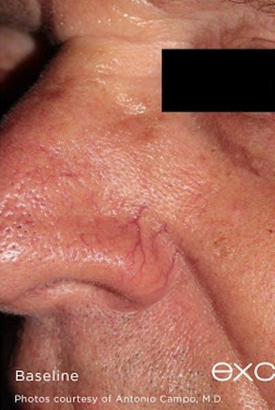 Excel V Vascular Laser Gallery - Patient 7510144 - Image 1