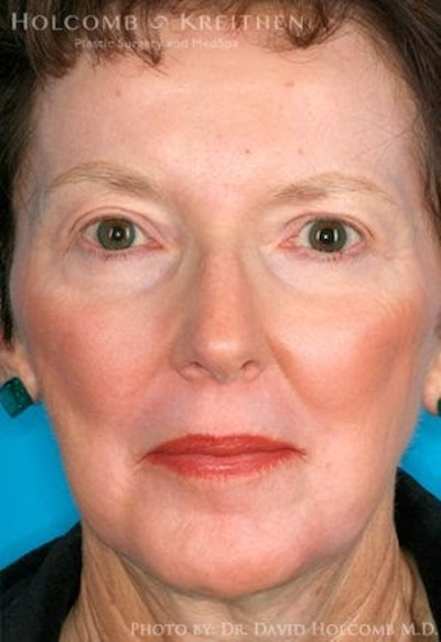 Laser/RF Assisted Facelift Gallery - Patient 7896483 - Image 2