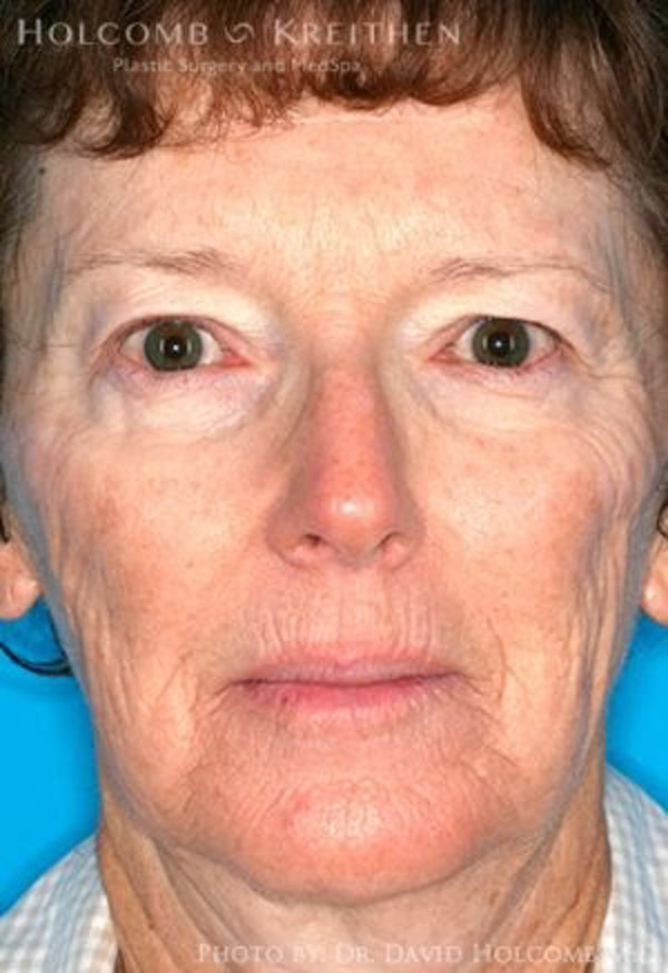 Before and After of Tampa Laser Skin Resurfacing