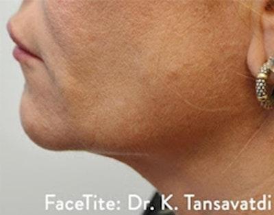 Facetite Gallery - Patient 7510172 - Image 2