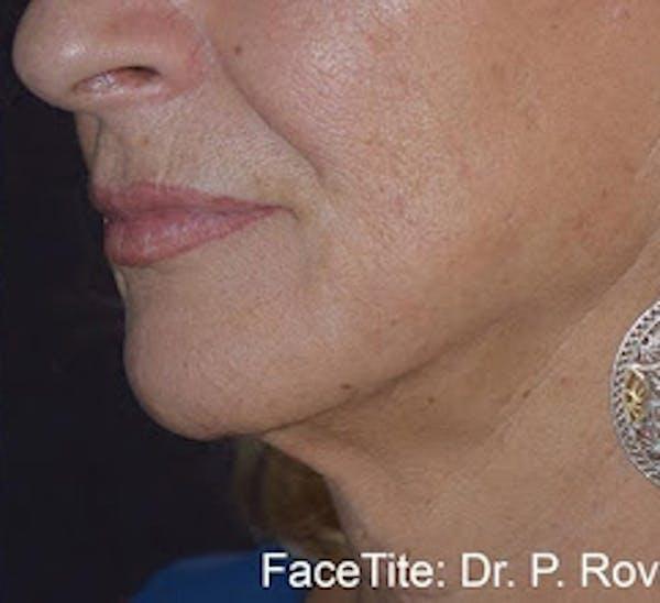 Facetite Gallery - Patient 7510173 - Image 2