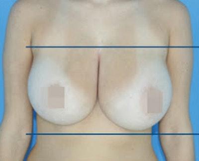 Bodytite Gallery - Patient 7510180 - Image 1