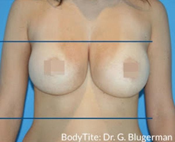 Bodytite Gallery - Patient 7510180 - Image 2