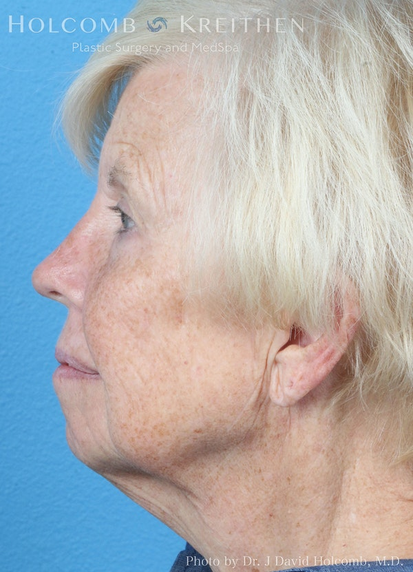Facelift Gallery - Patient 8059701 - Image 5