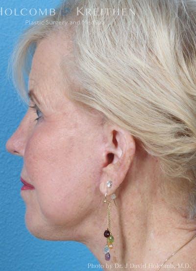 Facelift Gallery - Patient 8059701 - Image 6