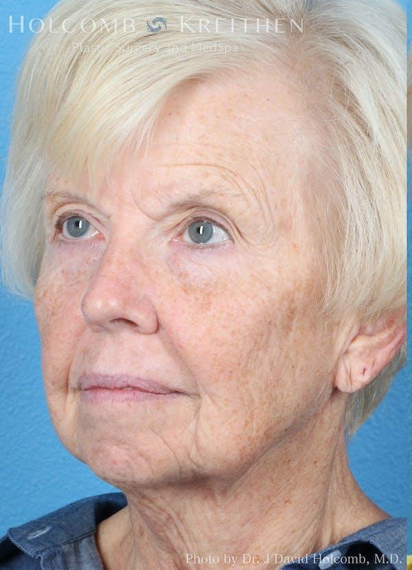 Facelift Gallery - Patient 8059701 - Image 3