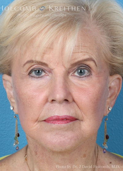 Facelift Gallery - Patient 8059701 - Image 2
