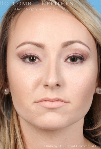 Rhinoplasty Gallery - Patient 8059726 - Image 1